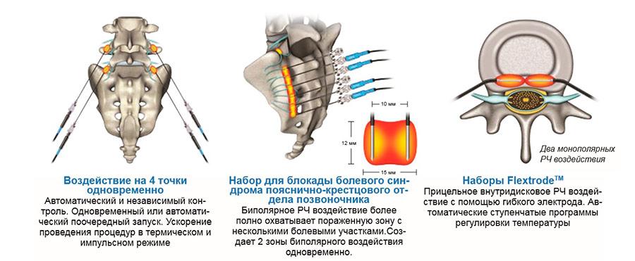 Схема установки игл при радиочастотной абляции