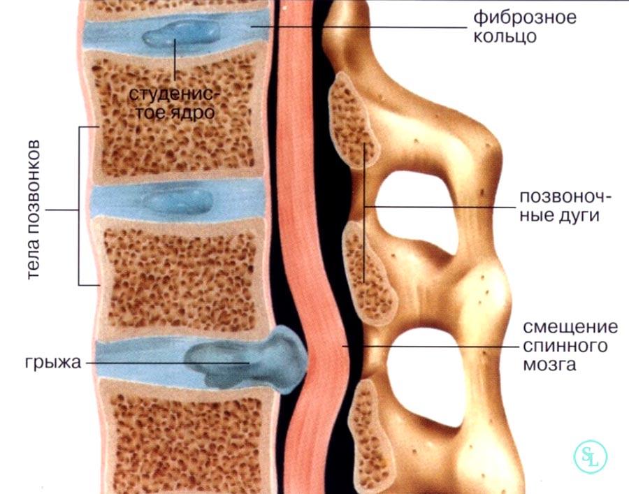 Удаление грыжи грудного отдела позвоночника