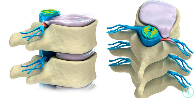 Эндоскопическое удаление межпозвонковой грыжи грудного отдела