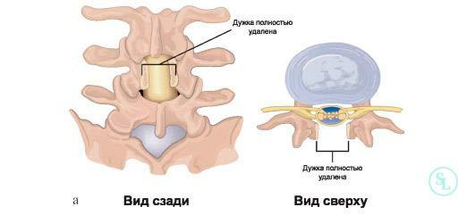 Операция при стенозе канала позвоночника
