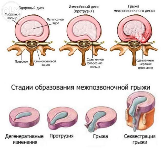Виды и стадии грыж поясничного отдела позвоночника