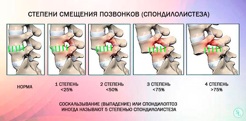 Степени спондилолистеза