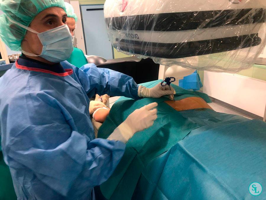Вертебропластика Th7 позвонка Источник: Переломом тела позвонка Th7 - выполнена вертебропластика костным цементом