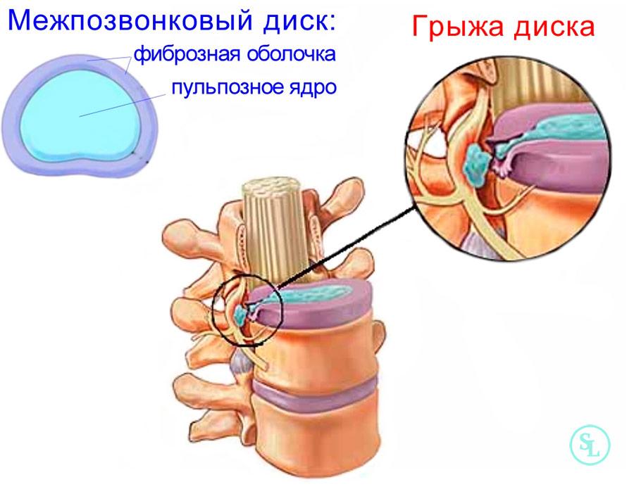 Межпозвоночный диск и разрыв фиброзной оболочки