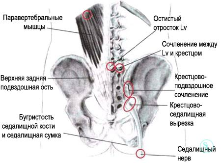Операция при артрозе крестцово-подвздошного сочленения