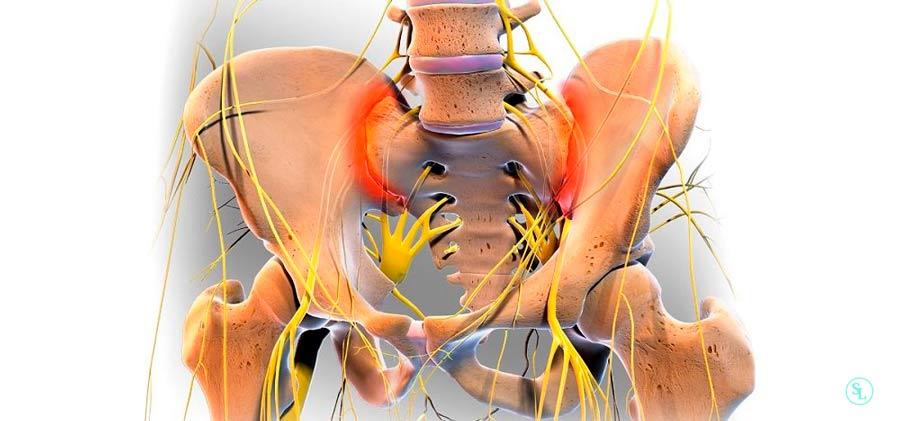 Лечение артроза крестцово-подвздошного сочленения