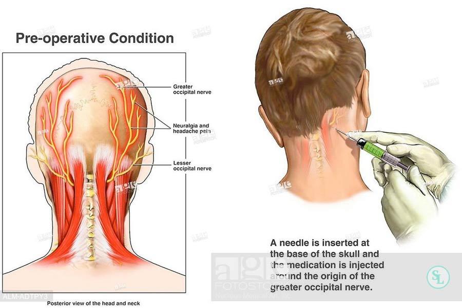 Хирургическое лечение невралгии затылочного нерва