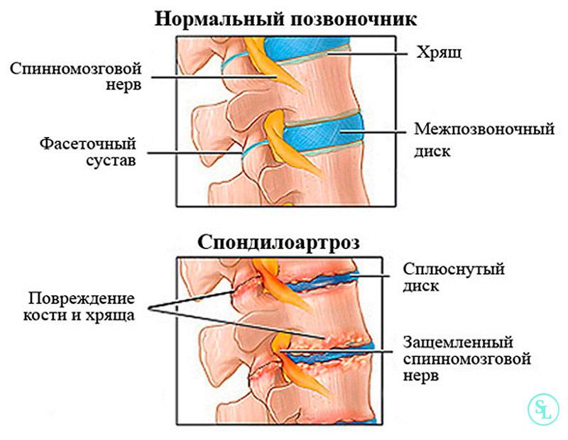 Лечение спондилоартроза