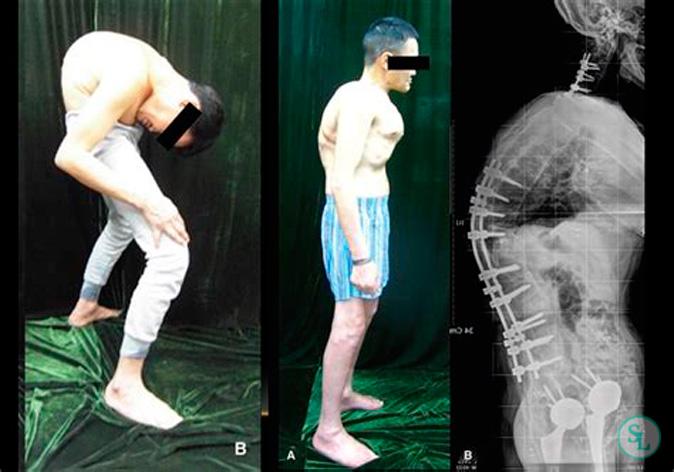 Хирургическое лечение болезни Бехтерева