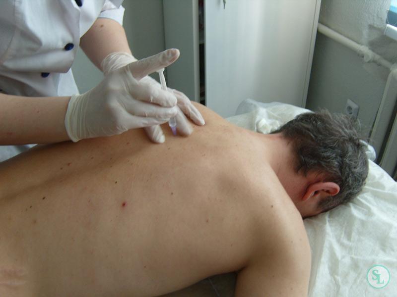 блокады грудного отдела позвоночника