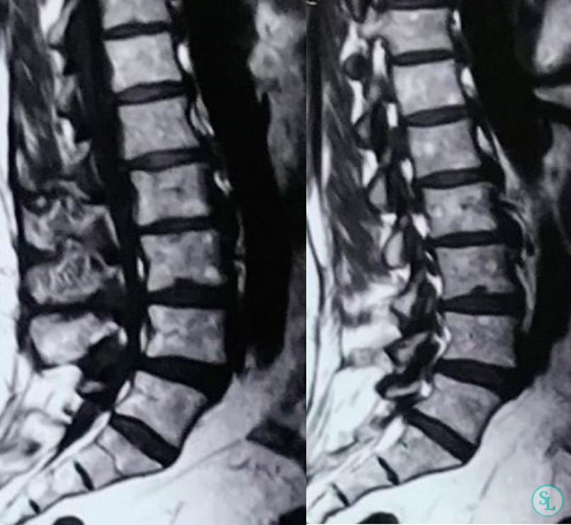 МРТ поясничного отдела позвоночника - многоуровневый дегенеративный стеноз позвоночного канала со сдавлением невральных структур фото 2