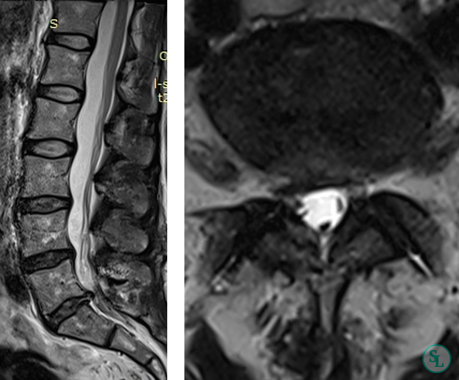 МРТ фораминальная грыжа м/п диска L5-S1 справа