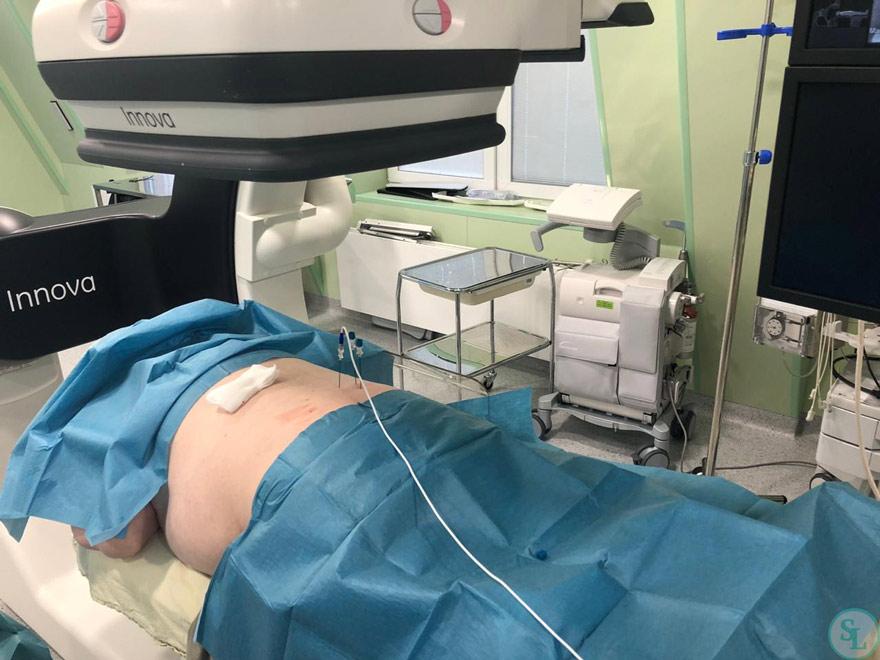 РЧА при боли в поясничном отделе  отдел позвоночника - операция