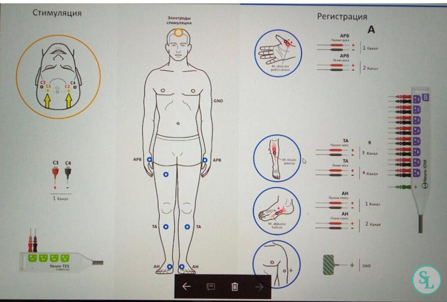 Нейрофизиологический мониторинг