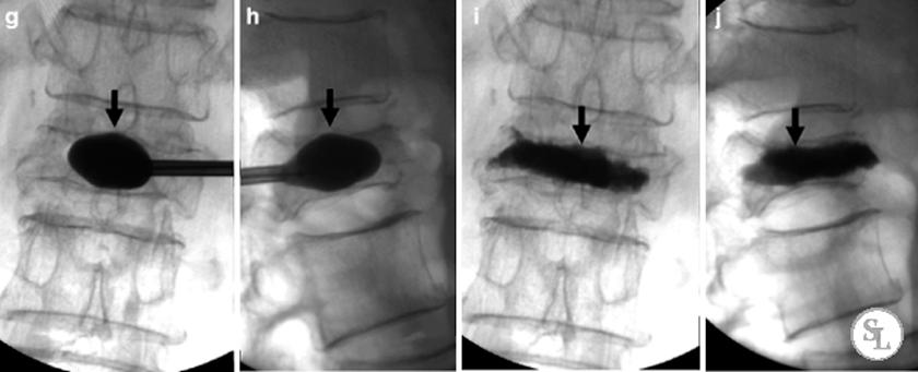 рентген до и после операции