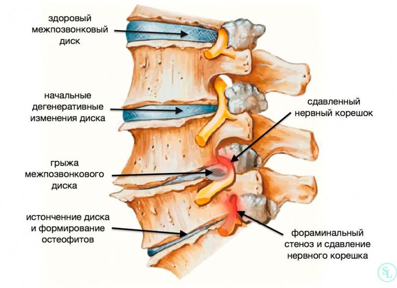 Стадии развития остеохондроза и грыж