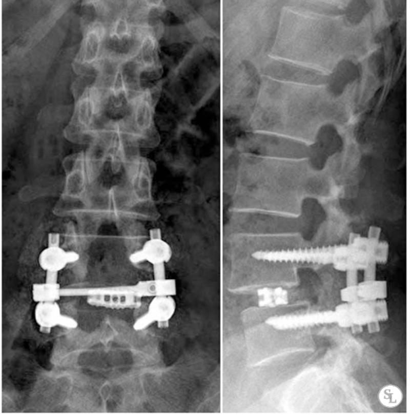 ТПФ на рентгене