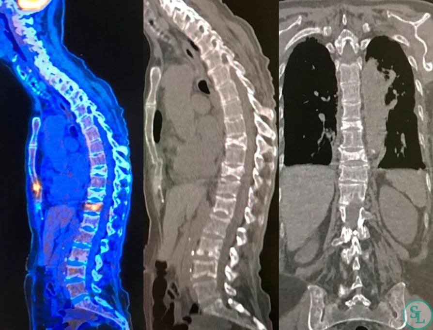 ПЭТ КТ-множественные перелом тел позвонков