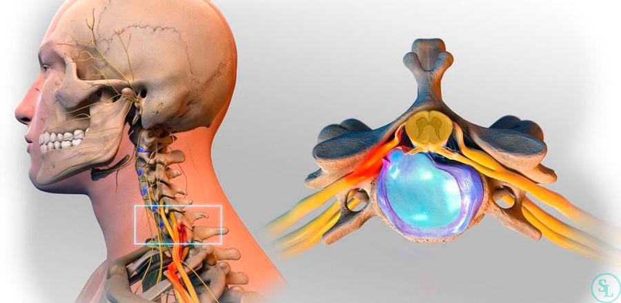 грыжа диска шейного отдела