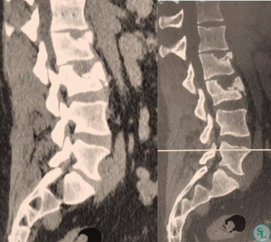 КТ- перелом L2,L3 позвонков