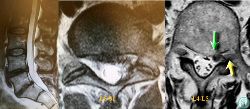 МРТ поясничного отдела позвоночника - фораминальная грыжа м/п диска на уровне L4-L5 и рецидив грыжи м/п диска на уровне L5-S1 слева