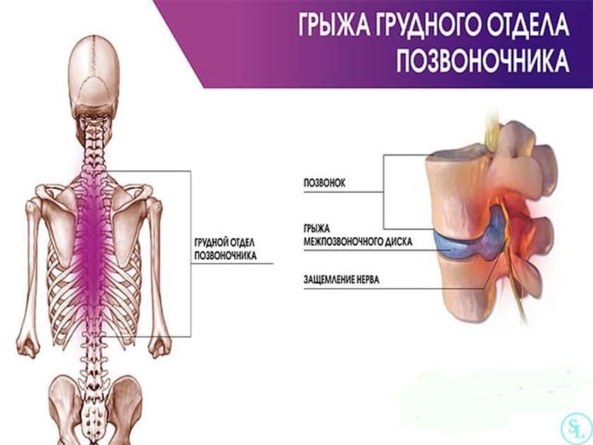 Грыжа диска грудного отдела позвоночника