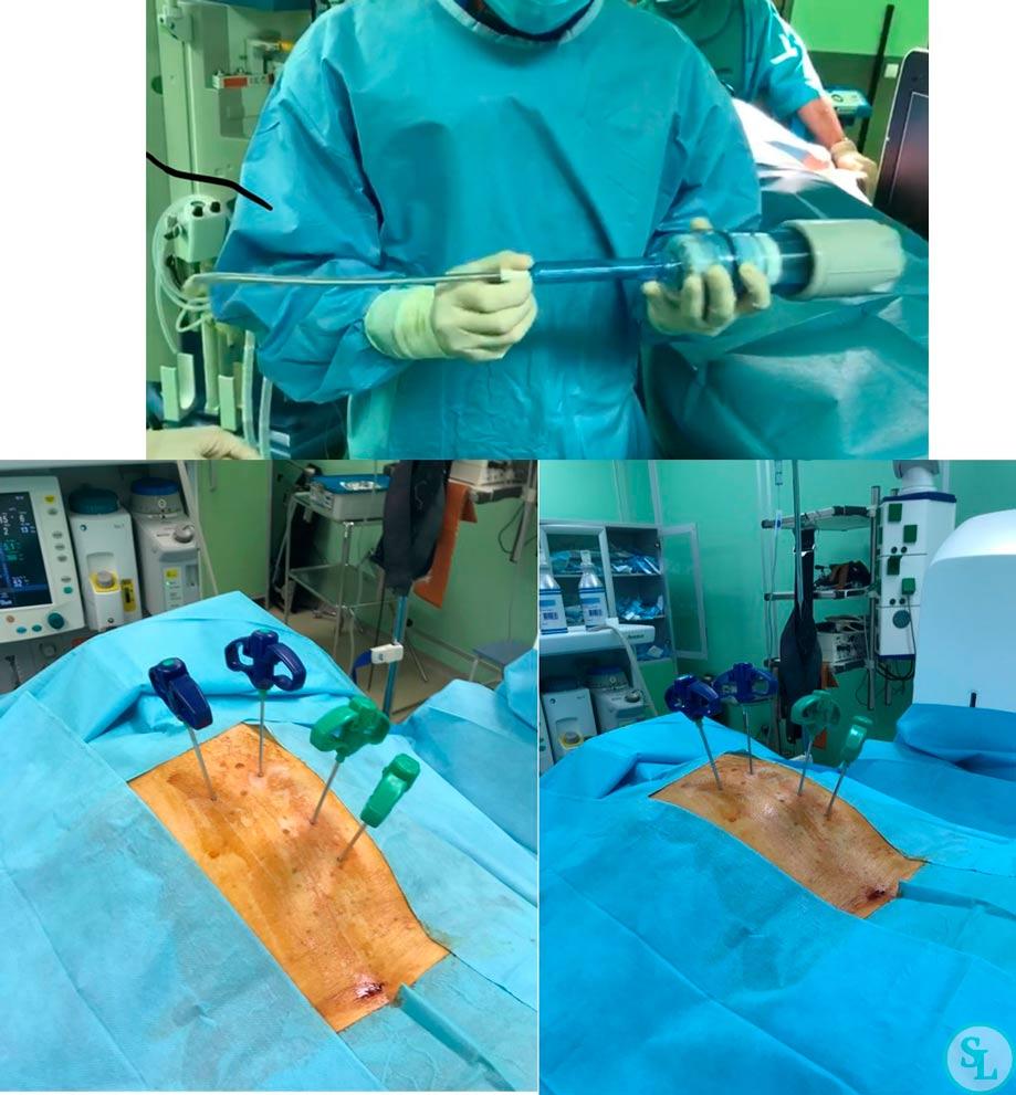 Вертебропластика в 84 года