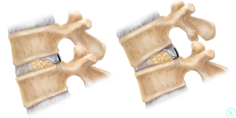 Имплантат Barricaid