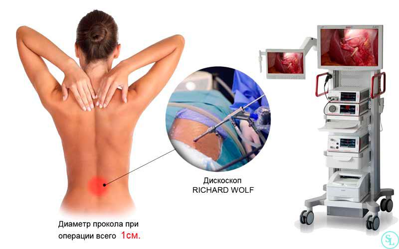 Эндоскопическая операция по удалению грыжи L5-S1