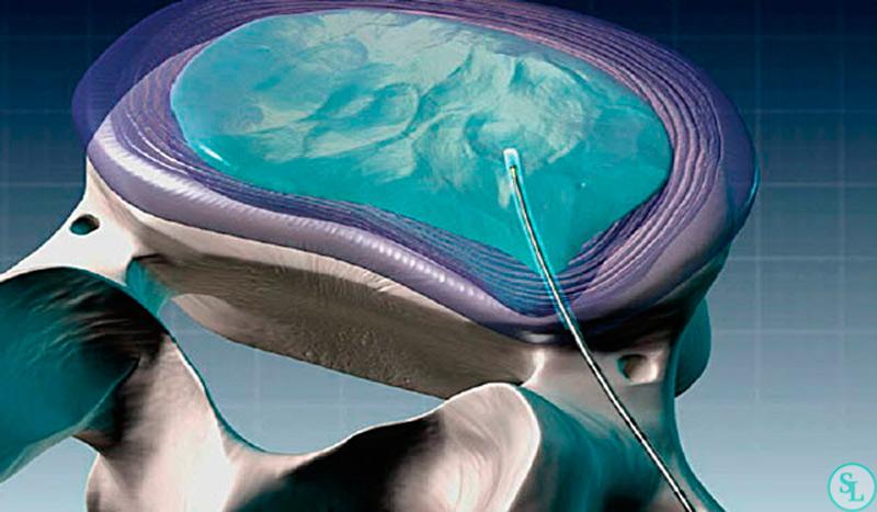 Пункционная хирургия