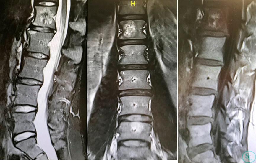 Гемангиома тела L1 позвонка