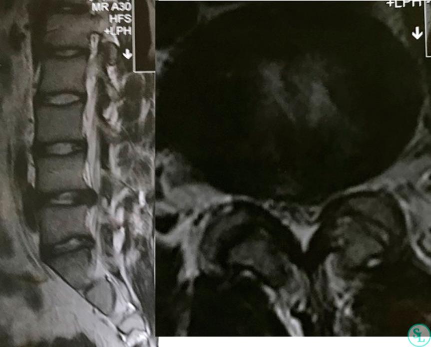 МРТ поясничного отдела позвоночника выявлена задне-боковая грыжа на уровне L4-L5 слева