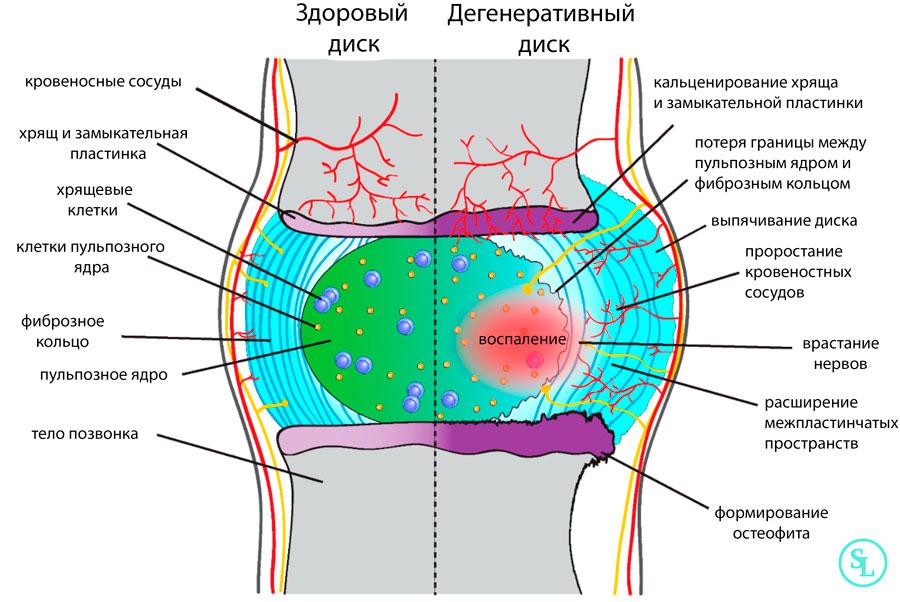 Патогенез развития грыжи диска