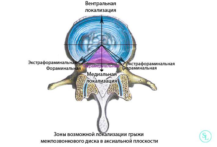 Секвестрированная грыжа ход операции