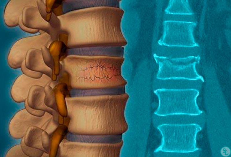 Декомпрессионный перелом позвоночника: симптомы и причины травмирования, первая помощь до приезда скорой и дальнейшее лечение, длительность реабилитации и прогноз, запрещенные действия, компрессионный перелом позвоночника