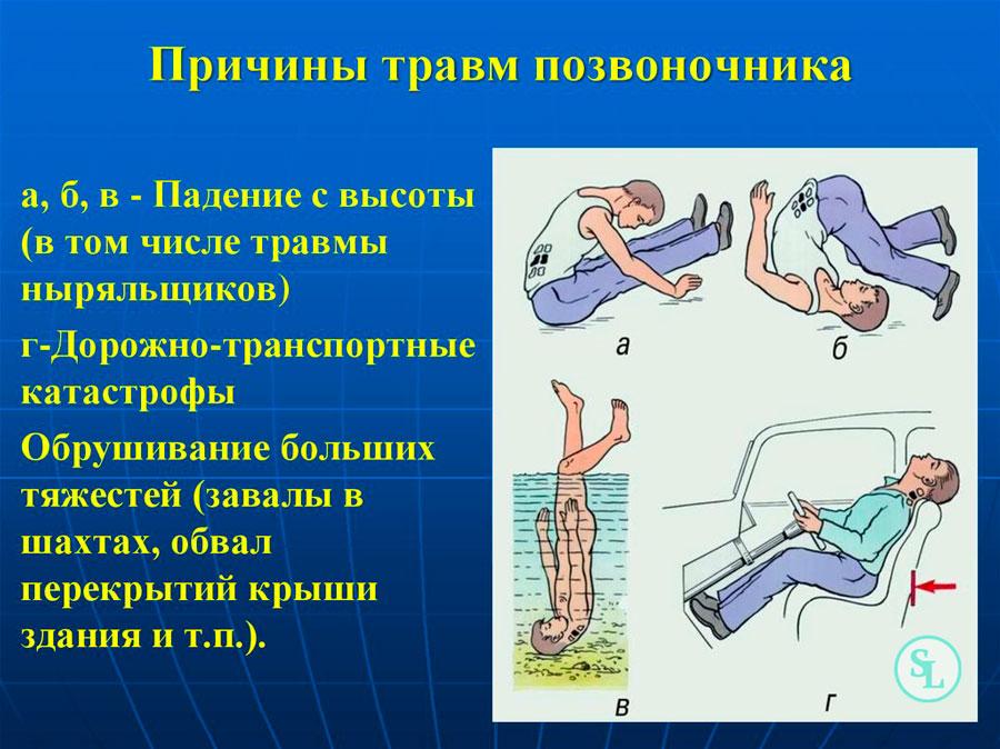 Компрессионный перелом позвоночника больничный