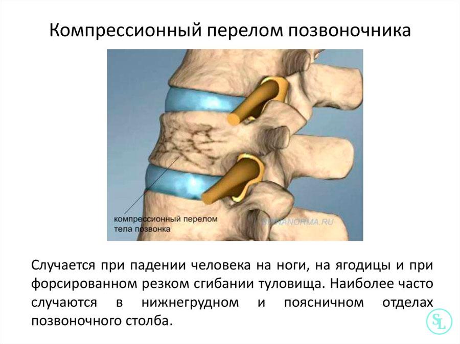 Компрессионный перелом позвоночника больничный thumbnail