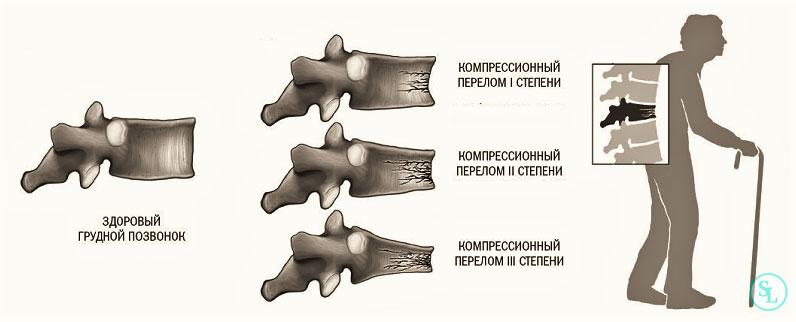 Закрытый компрессионный перелом грудного позвоночника