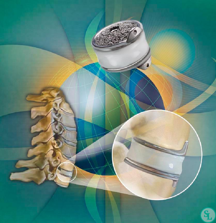 ускоряет процесс фото имплантов шейного отдела позвоночника как