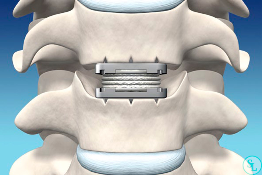 Операция на позвоночнике силикон
