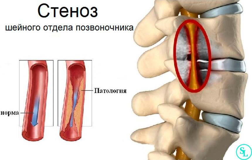 Центральный стеноз шейного отдела позвоночника
